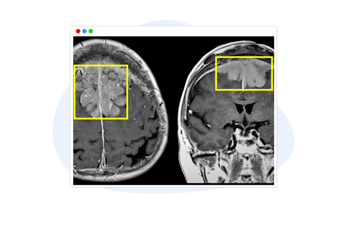 Diagnostic Assistance Image Annotation
